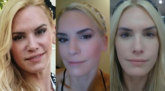 1. Bild: Vorher, 2. Bild: Nachher (beide geschminkt) 3. Bild: Nachher ungeschminkt. Die gesamte Gesichtshaut wirkt straffer und feinporiger