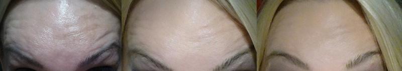 Stirn-Querfalten vorher und nachher
