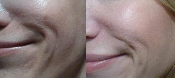 Wange, Nasolabialfalten und Poren, vorher und nachher