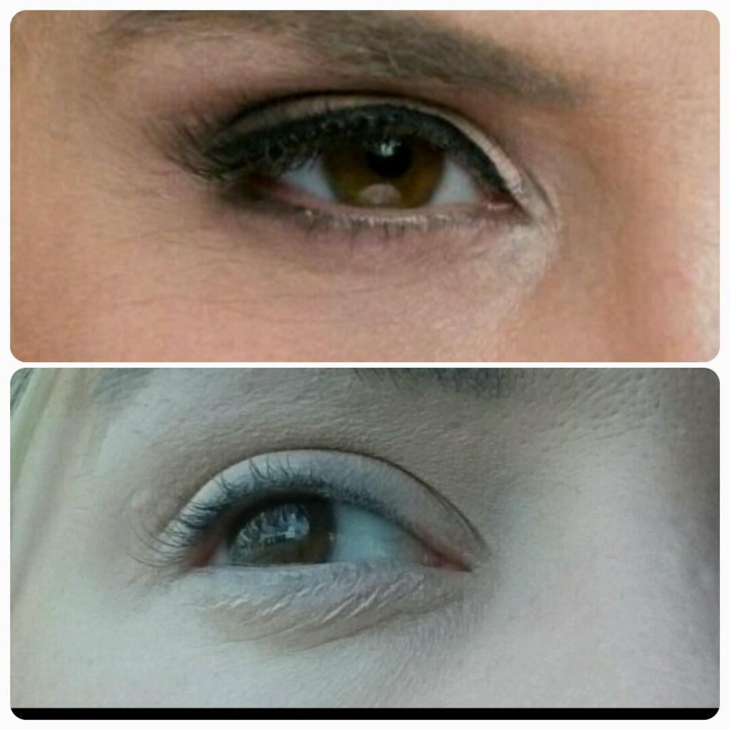 Augenfältchen: Vorher/ nach 12 Wochen