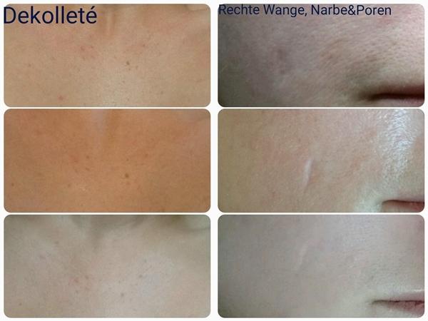 Oberstes Foto: Vorher Mittleres Foto: Post-Treatment Unterstes Foto: Endergebnis nach 5 Tagen Behandelt wurden: Unreinheiten, vergrößerte Poren & Narbe, Grauschleier