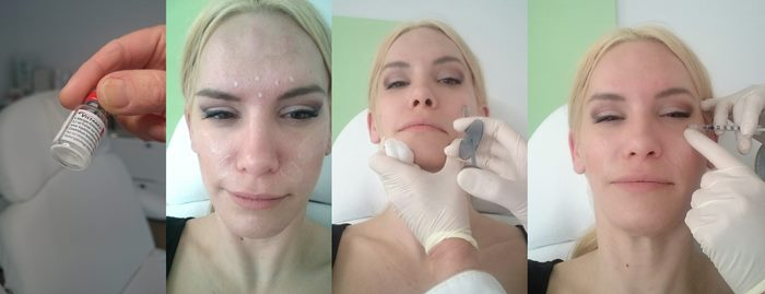 1. Botoxfläschchen