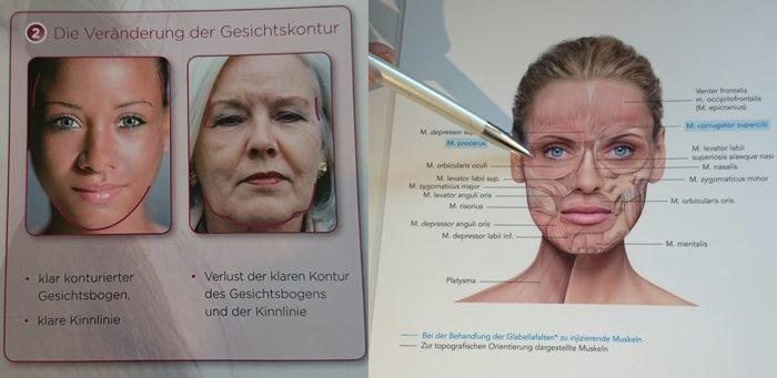 Dr. Perianez erklärt anhand von Bildmaterial, wie die Alterungsprozesse unsere Gesichtskonturen verändern