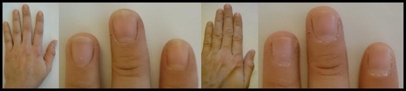 Meine Fingernägel; 1. Foto: Hand Vorher, 2. Foto: drei Finger close, 3. Foto: Hand nachher, 4. Foto: drei Finger close