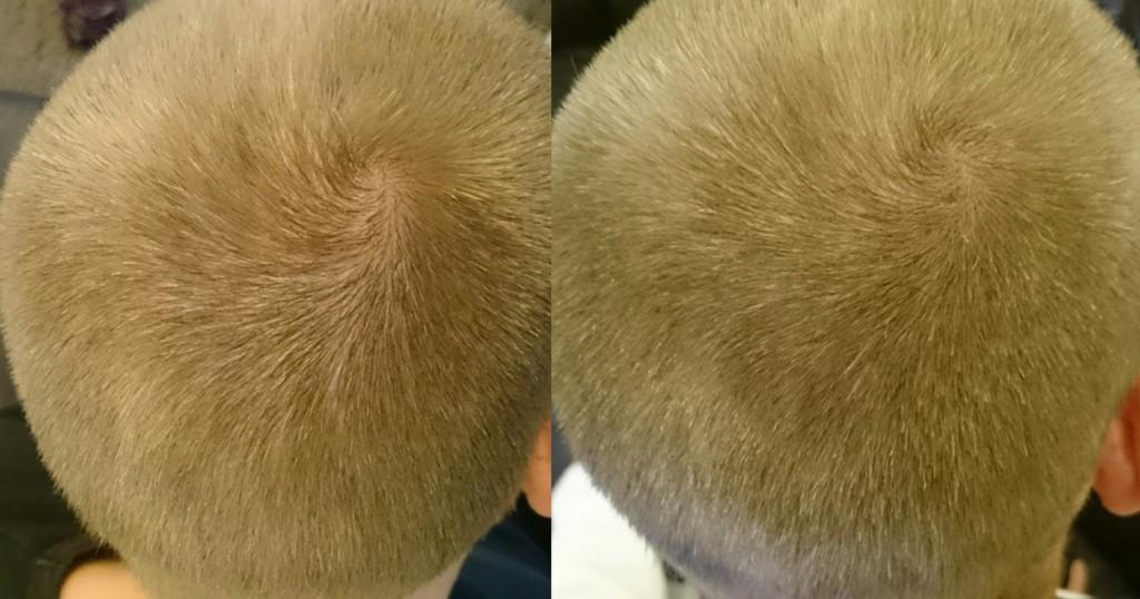 Oberkopf Foto, links vorher, rechts nach dem 4-Monats Test mit Bioxsine