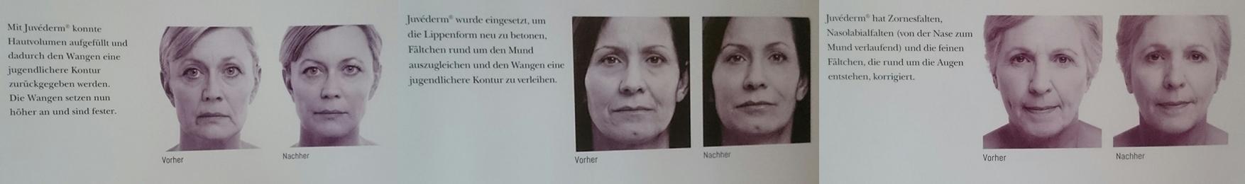 Weitere Juvederm-Behandlungsergebnisse