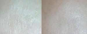 1. Bild: Stirn ohne Produkt, 2. Bild: mit skin perfect primer