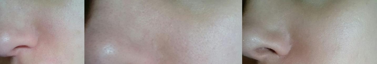 1. Bild: Nackig, 2. Bild: Nackig Nahaufnahme Nase und neben der Nase, 3. Bild: Mit dermalogica Primer