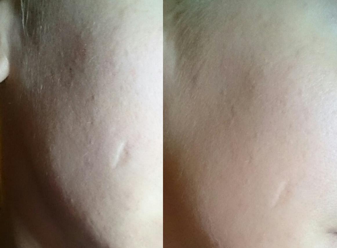 1. Bild: Ohne Produkt, 2. Bild: Mit skin perfect primer