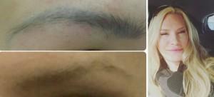 Links oben: vorher, unten: 1 Monat nach der 1. Laserung, rechts: 2 Monate nach der 1. Laserung (mit hellem Augenbrauenstift Lücken aufgefüllt)