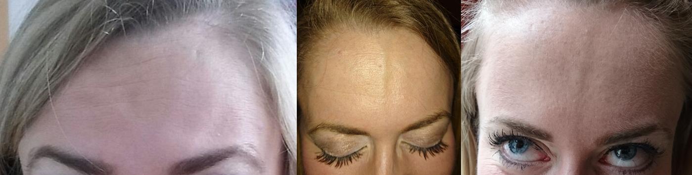 Botox Behandlungsverlauf
