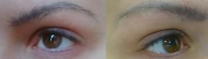 Farbveränderug der Permanent-Make-up Tinte über 15 Jahre: Von dunkelbraun zu blau (!)