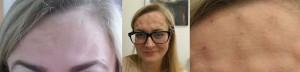 Ilonas Stirn vorher und direkt nach der Behandlung