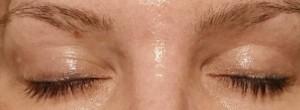 10 Wochen Post-Laserung, Kontrast erhöht um die Restfarbe besser zu sehen. Brauenhäärchen sind sonst noch heller!