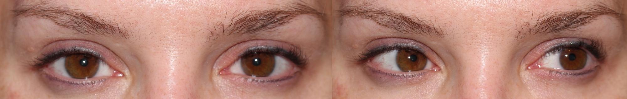"""Wimpern nach acht Wochen->linkes Auge (auf dem Foto rechts) Revitalash-daher """"curl-Effekt"""""""