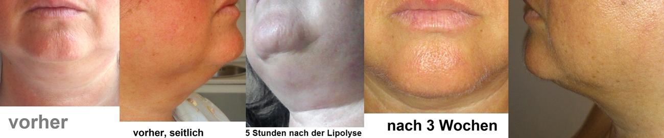 Behandlung am Doppelkinn - Ergebnis nach einer Behandlung