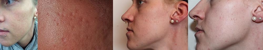 1. &2. Bild: vorher, 3.&4. Bild nach 6 Monaten