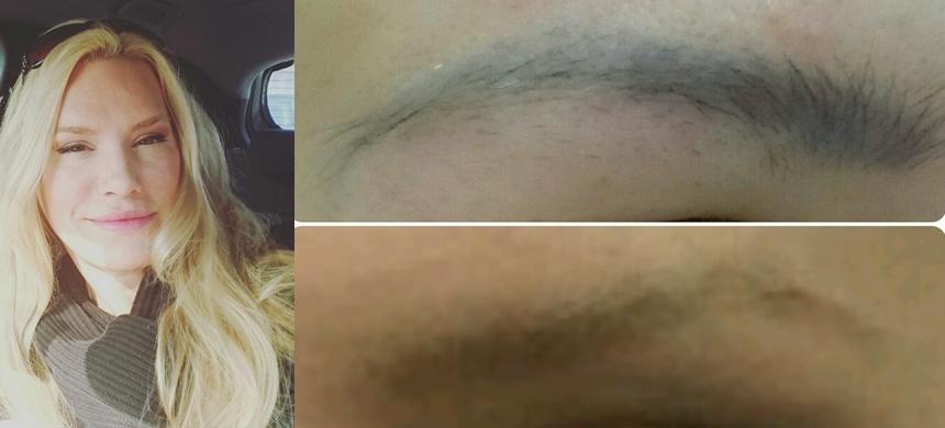 Serie: Sprechstunde Bei Dr. Hoffmann – Entfernung Von Tattoos Und Permanent Make-up Mit Dem Laser