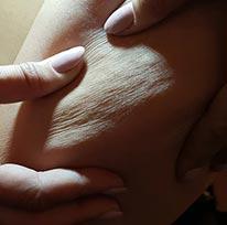 Cellulite: Alter und Ausprägungen