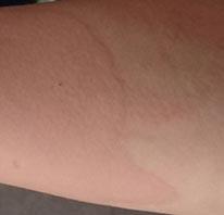 Rötung der Haut beim Dr. Juchheim Test