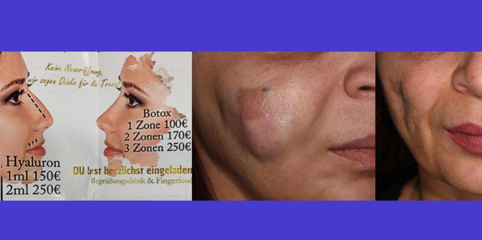 Botox, Filler Und Hyaluron-Pen Behandlungen Durch Kosmetiker Sind ILLEGAL & GEFÄHRLICH! Sarina Haddid Und Weitere Geschädigte Klagen An