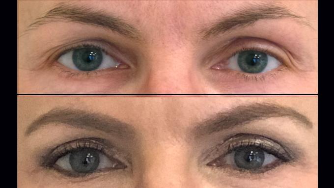 Test: Erfahrungsbericht Oberlidstraffung | Lidkorrektur Health2beauty | Dr. Eva Kusch | Essen/NRW | Blepharoplastik